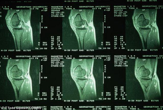 Térdazonosítás – újdonság a biometriában